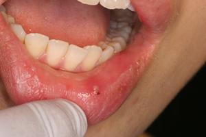 口唇ヘルペス – 吉祥寺 歯医者 – さくま歯科